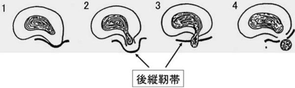 「Macnabの分類とは?」椎間板ヘルニアは脱出の程度で4つのtypeに分類される。.png